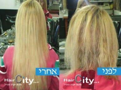 מילוי-שיער-בלייזר-לפני-ואחר