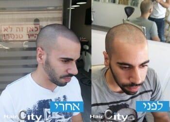 המרכז להדמיית שיער