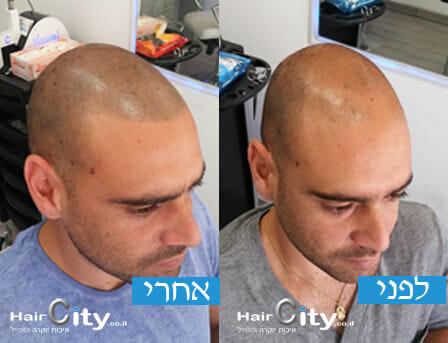 תמונות הדמיית שיער 03