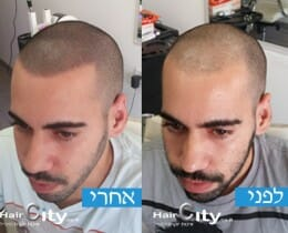הדמיית שיער 1