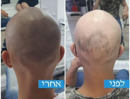 הדמיית שיער בירושלים