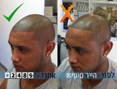 תיקון קעקוע שיער