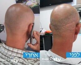 צלקות לפני ואחרי | תמונות לפני ואחרי