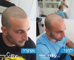 הדמיית שיער 6