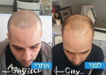 הדמיית שיער 5