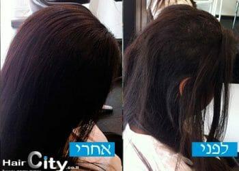 שיקום שיער בגבעתיים